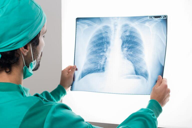 Asbestos Claims Newcastle  Mesothelioma North East