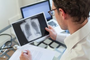 Can Asbestos Cause Lung Cancer?